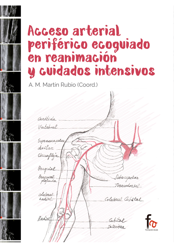 ACCESO ARTERIAL PERIFERICO ECOGUIADO EN REANIMACION Y CUIDAD